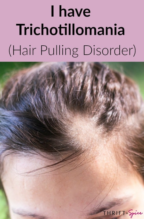 I have trichotillomania #trichotillomania #hairpullingdisorder #hairloss